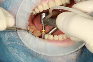 Fog implantátum fájdalom nélkül